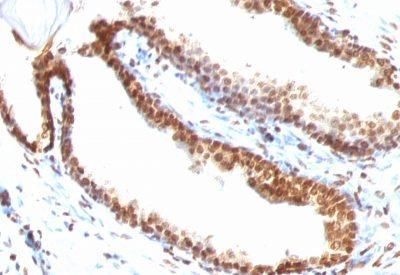 Monoclonal anti Double Stranded DNA (dsDNA) (DSD/958)