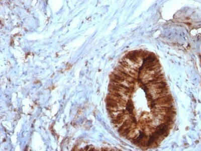 Monoclonal anti Beta 2 Microglobulin (B2M) (B2M/961)