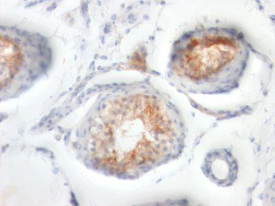 Monoclonal anti CD147 (BSG/963)