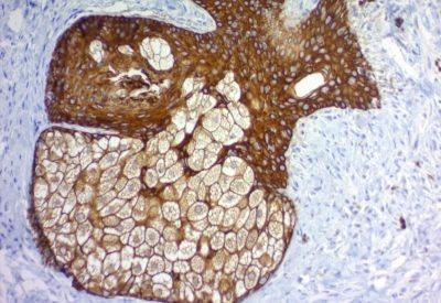 Monoclonal anti Cytokeratin, pan (PAN CK) (KRT7/760 / KRT17/ 778 / KRT18/834 / KRTL/828 / KRTH/829 / KRT/457)