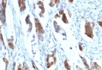 Monoclonal anti Mucin 5AC (MUC5AC) (58M1)