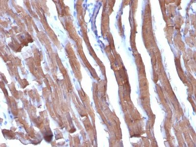 Monoclonal anti Muscle Specific Actin (HHF35 + MSA/953)
