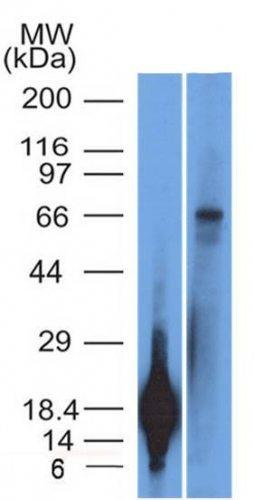 Monoclonal anti TRIM29 (TRIM29/1042)