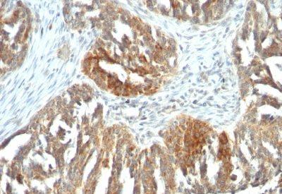 Monoclonal anti VEGF A (VEGF/1063)