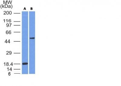 Monoclonal anti SOX10 (SOX10/991 + SOX10/1074)