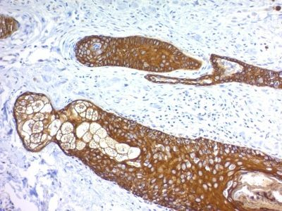 Monoclonal anti Cytokeratin, HMW (KRTH/1076)