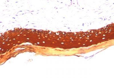 Monoclonal anti Cytokeratin, LMW (KRTL/1077)
