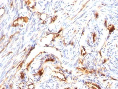 Monoclonal anti Beta 2 Microglobulin (B2M) (B2M/1118)