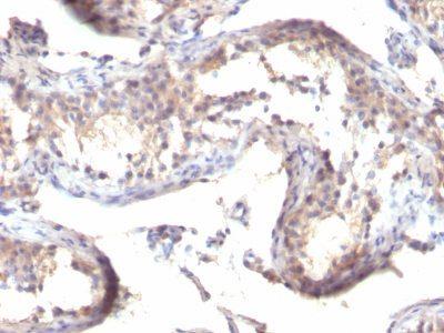 Monoclonal anti TGFalpha (TGFA/1119)