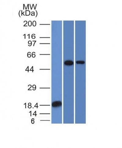 Monoclonal anti TOX3 (TOX3/1124)