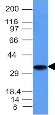 Monoclonal anti CD74 (CLIP/1133)