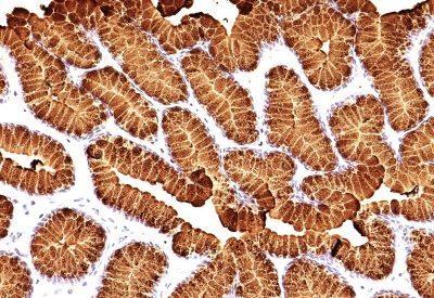 Monoclonal anti Mucin 5AC (MUC5AC) (MUC5AC/917 + 45M1)