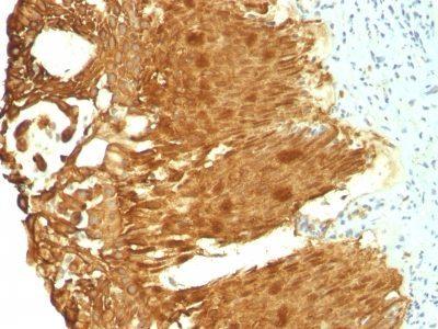 Monoclonal anti Cytokeratin 19 (KRT19/799 + KRT19/800)