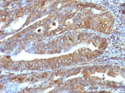 Monoclonal anti Vimentin (VM1170)