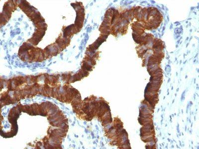 Monoclonal anti Cytokeratin 7 (KRT7/1198)