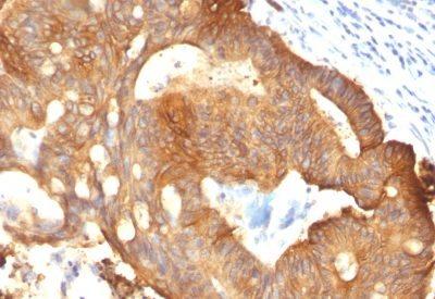 Monoclonal anti Cytokeratin 8 (B22.1)
