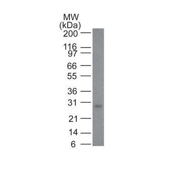 Monoclonal anti bcl 2 (100/D5 + 124)