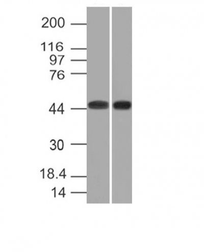 Monoclonal anti Napsin A (NAPSA/1238)