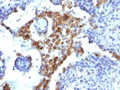 Monoclonal anti Napsin A (NAPSA/1239)