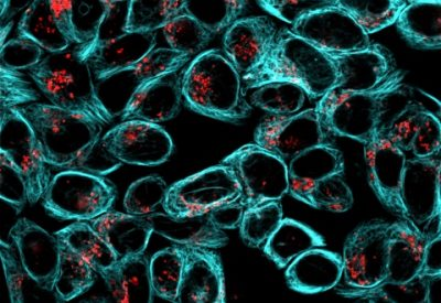 Live HeLa cells stained with ViaFluor® 405 Live Cell Microtubule Stain (blue) and LysoView™ 540 (red).