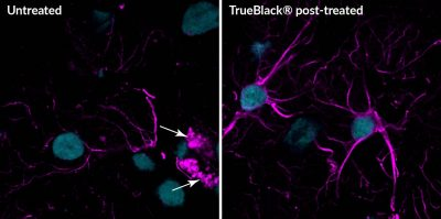 TrueBlack Lipofuscin Autofluorescence Quencher post-treatment