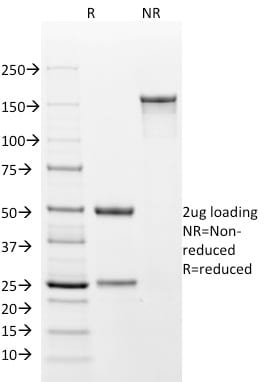 SDS-PAGE Analysis Purified Cytokeratin 18 Mouse Monoclonal Antibody (DA7). Confirmation of Purity and Integrity of Antibody.