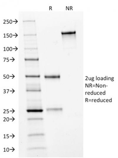 SDS-PAGE Analysis Purified HER-2 Mouse Monoclonal Antibody (HRB2/282). Confirmation of Purity and Integrity of Antibody.