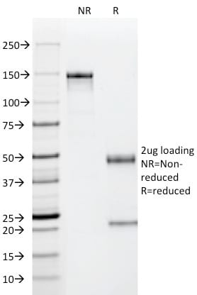 SDS-PAGE Analysis Purified p53 Mouse Monoclonal Antibody (PAb122). Confirmation of Purity and Integrity of Antibody.