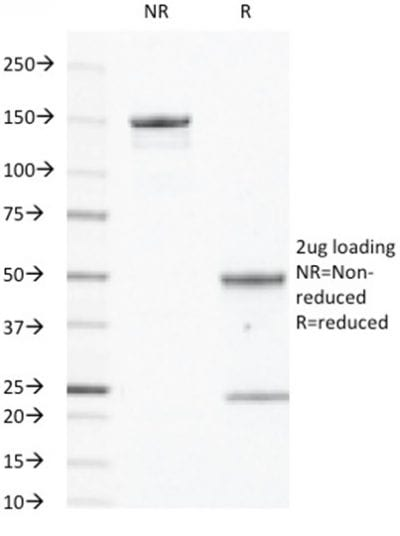 SDS-PAGE Analysis Purified EGFR Mouse Monoclonal Antibody (GFR/450). Confirmation of Purity and Integrity of Antibody.