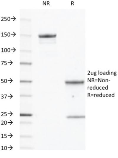 egfr monoclonal mouse antibody  gfr450