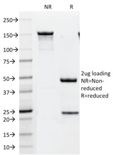SDS-PAGE Analysis  Purified HER-2 Mouse Monoclonal Antibody (HRB2/451). Confirmation of Purity and Integrity of Antibody.