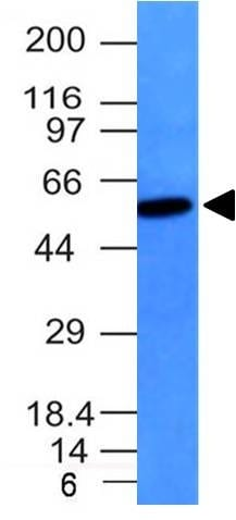 Western Blot Raji Cell Lysate Vimentin Mouse Monoclonal Antibody (VM452).