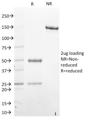 SDS-PAGE Analysis Purified STAT6 Mouse Monoclonal Antibody (STAT6/2410).Confirmation of Purity and Integrity of Antibody.