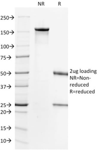 SDS-PAGE Analysis Purified HER-2 Mouse Monoclonal Antibody (HRB2/718). Confirmation of Purity and Integrity of Antibody.