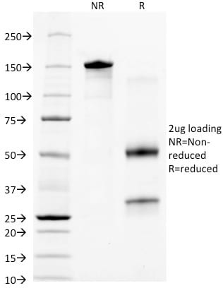 SDS-PAGE Analysis Purified Cytokeratin 18 Mouse Monoclonal Antibody (KRT18/836). Confirmation of Purity and Integrity of Antibody.