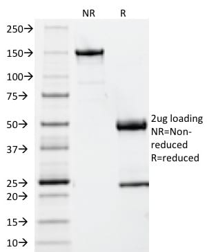 SDS-PAGE Analysis Purified Beta-2-Microglobulin Mouse Monoclonal Antibody (B2M/961). Confirmation of Integrity and Purity of Antibody.
