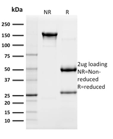 SDS-PAGE Analysis Purified CD117 Mouse Monoclonal Antibody (KIT/982). Confirmation of Purity and Integrity of Antibody