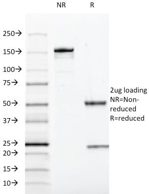 SDS-PAGE Analysis Purified SOX10 Mouse Monoclonal Antibody (SOX10/991). Confirmation of Purity and Integrity of Antibody.