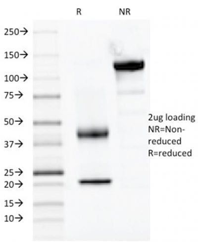 SDS-PAGE Analysis Purified PAX2 Monoclonal Antibody (PAX2/1104). Confirmation of Purity and Integrity of Antibody.