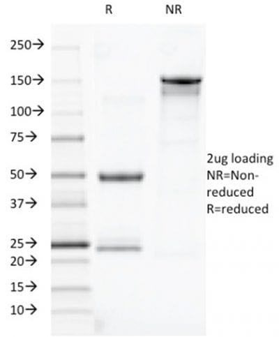 SDS-PAGE Analysis Purified TOX3 Mouse Monoclonal Antibody (TOX3/1123). Confirmation of Purity and Integrity of Antibody.