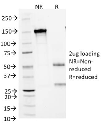 SDS-PAGE Analysis Purified ARG1Mouse Monoclonal Antibody (ARG1/1125). Confirmation of Purity and Integrity of Antibody.