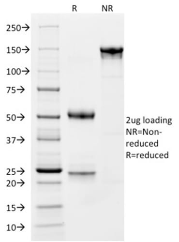 SDS-PAGE Analysis Purified CD163 Mouse Monoclonal Antibody (M130/1210).Confirmation of Purity and Integrity of Antibody.