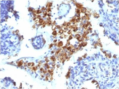 Formalin-fixed paraffin-embedded human Lung Adenocarcinoma stained with Napsin A Mouse Monoclonal Antibody (NAPSA/1238).