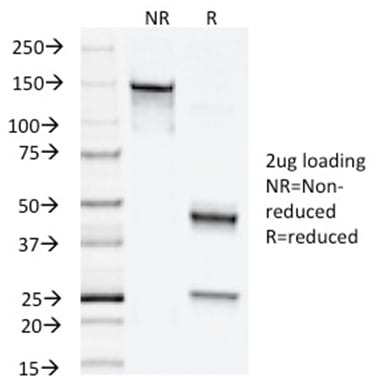 SDS-PAGE Analysis Purified Napsin A Mouse Monoclonal Antibody (NAPSA/1238). Confirmation of Purity and Integrity of Antibody.