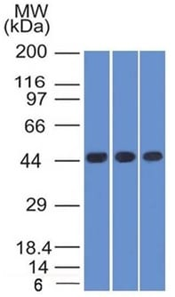 Western Blot of K562 HEK293 and A549 Cell Lysates Using Napsin A Mouse Monoclonal Antibody (NAPSA/1238).
