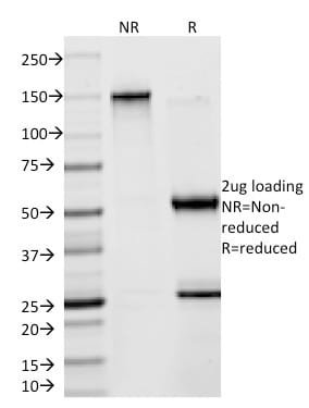 SDS-PAGE Analysis Purified Creatine Kinase-B (CKB) Mouse Monoclonal Antibody (CKBB/1268).Confirmation of Purity and Integrity of Antibody.