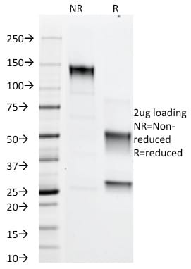 SDS-PAGE Analysis Purified Adipophilin Mouse Monoclonal Antibody (ADFP/1366). Confirmation of Purity and Integrity of Antibody.