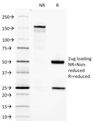 SDS-PAGE Analysis Purified Adiponectin Mouse Monoclonal Antibody (ADPN/1370). Confirmation of Purity and Integrity of Antibody.