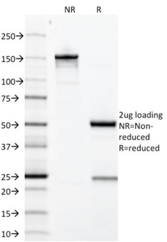SDS-PAGE Analysis Purified Growth Hormone Mouse Monoclonal Antibody (GH/1371). Confirmation of Purity and Integrity of Antibody.