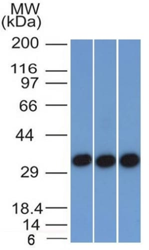 Western Blot of 293 A431 and HCT116 Cell Lysate using   EpCAM Mouse Monoclonal Antibody (EGP40/1372).